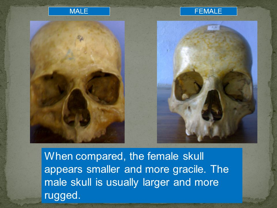 MALE FEMALE. When compared, the female skull appears smaller and more gracile.