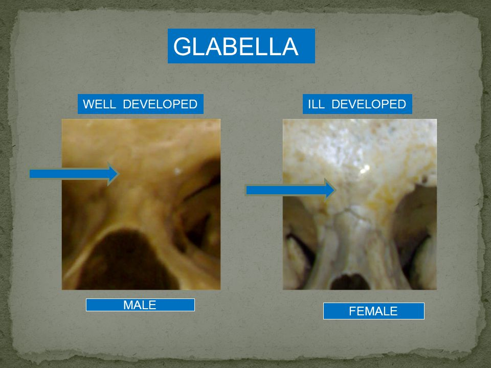 GLABELLA WELL DEVELOPED ILL DEVELOPED MALE FEMALE