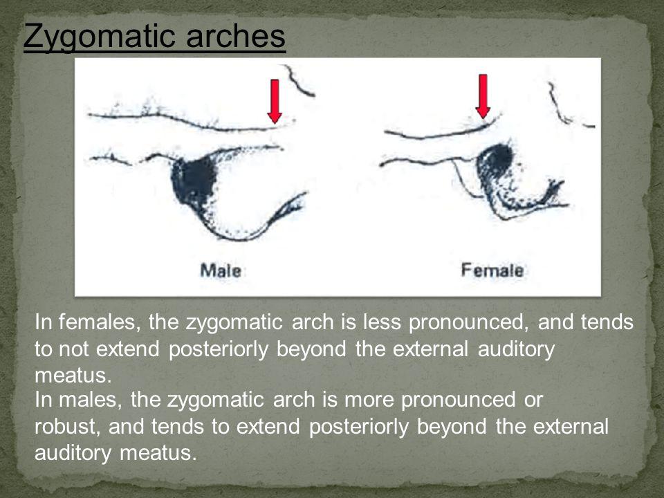 Zygomatic arches In females, the zygomatic arch is less pronounced, and tends to not extend posteriorly beyond the external auditory meatus.
