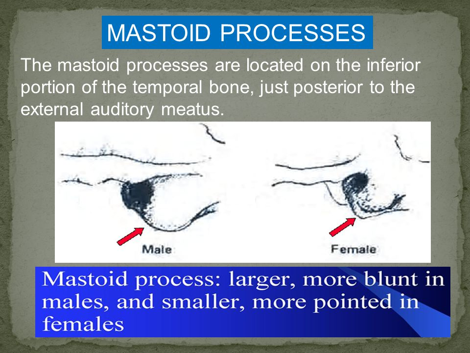 MASTOID PROCESSES The mastoid processes are located on the inferior portion of the temporal bone, just posterior to the external auditory meatus.