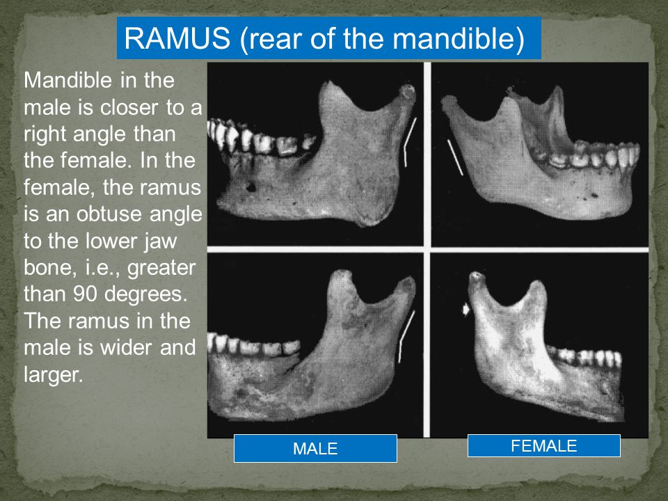RAMUS (rear of the mandible)