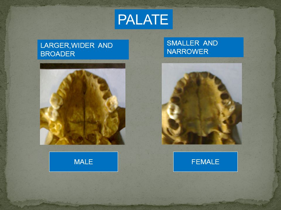 PALATE SMALLER AND NARROWER LARGER,WIDER AND BROADER MALE FEMALE