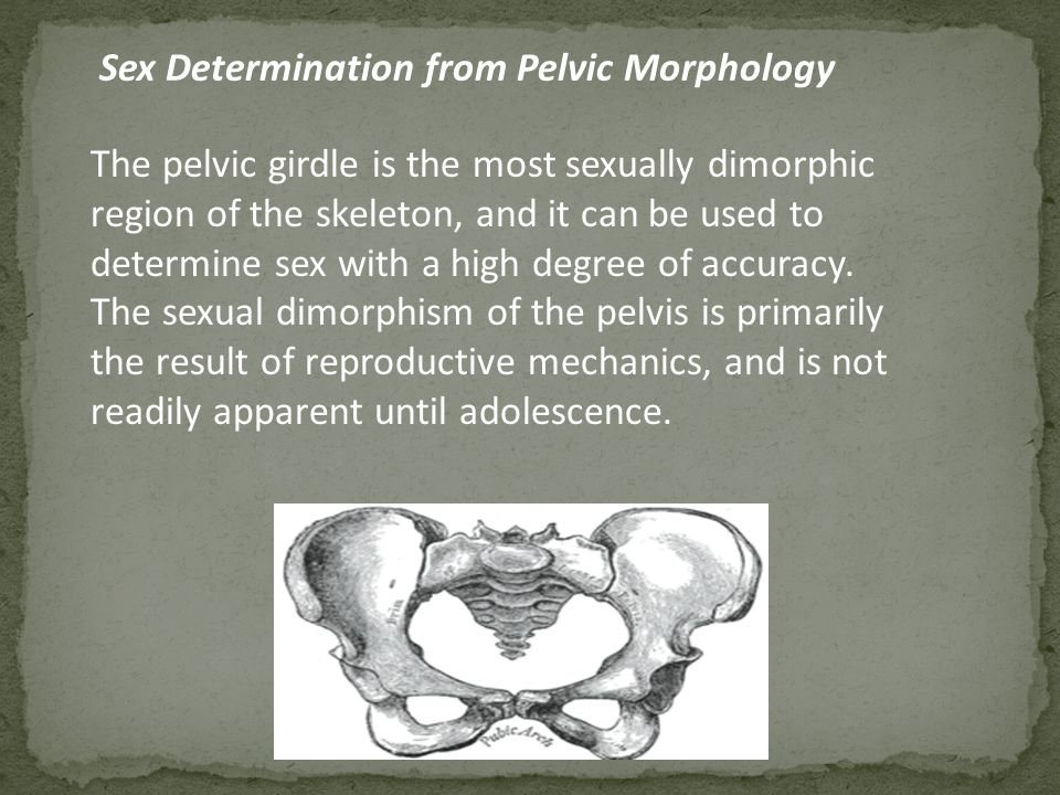 Sex Determination from Pelvic Morphology