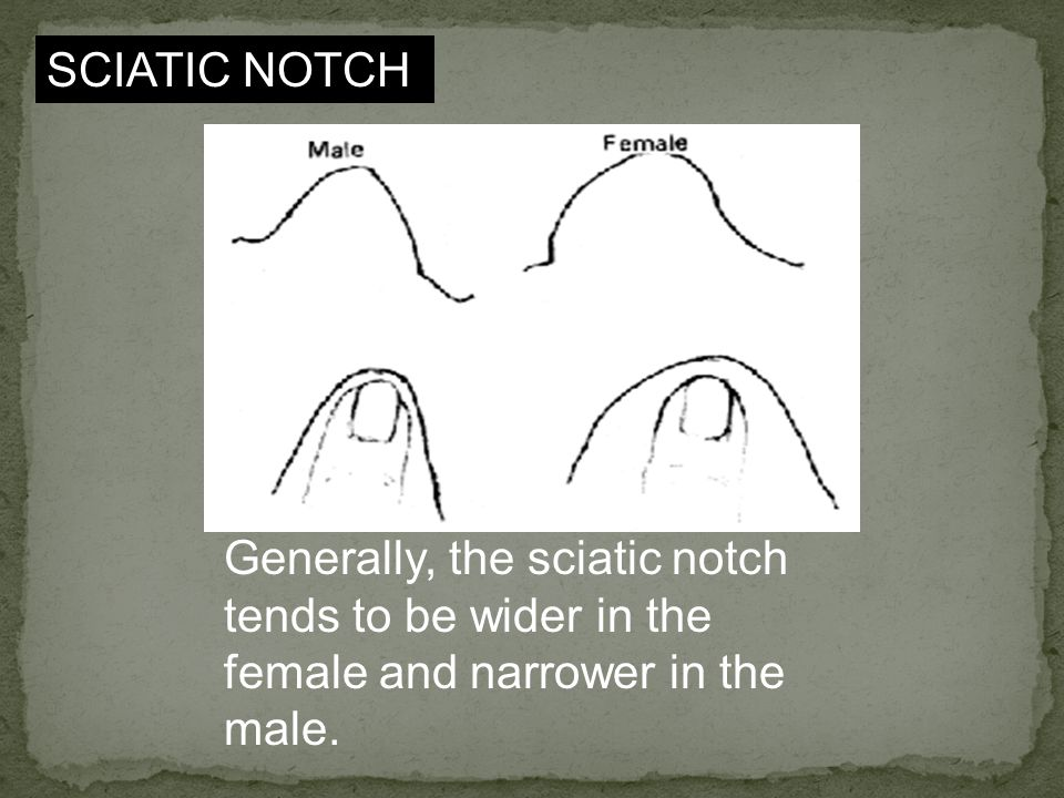 SCIATIC NOTCH Generally, the sciatic notch tends to be wider in the female and narrower in the male.