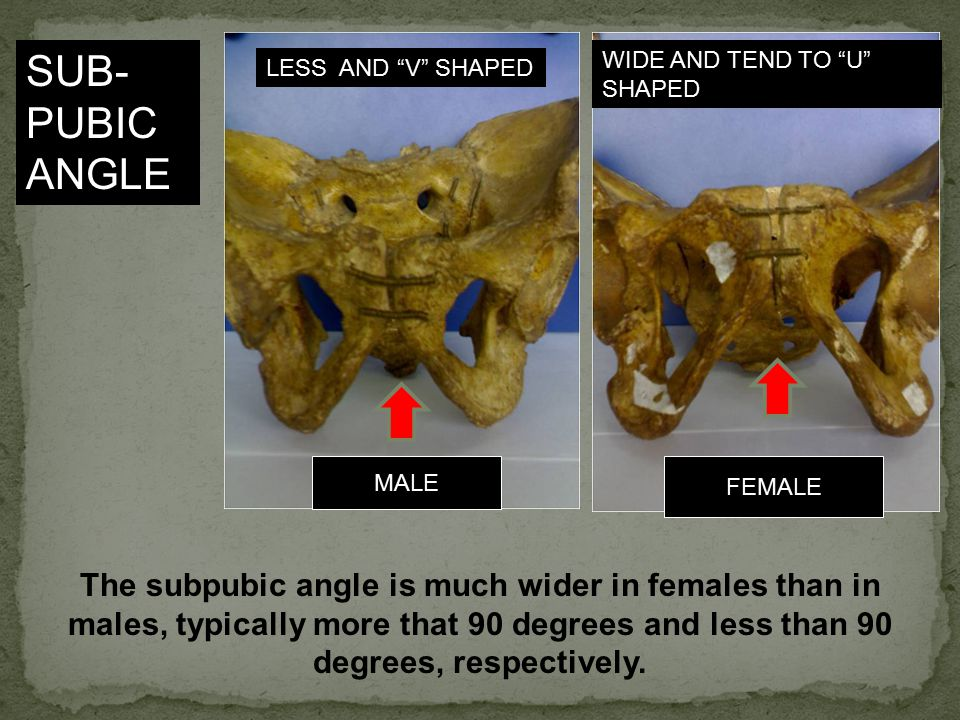 SUB-PUBIC ANGLE WIDE AND TEND TO U SHAPED. LESS AND V SHAPED. MALE. FEMALE.