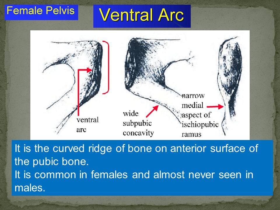 It is the curved ridge of bone on anterior surface of the pubic bone.
