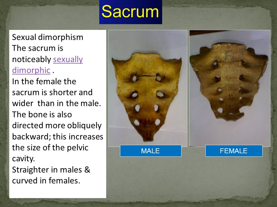 The sacrum is noticeably sexually dimorphic .