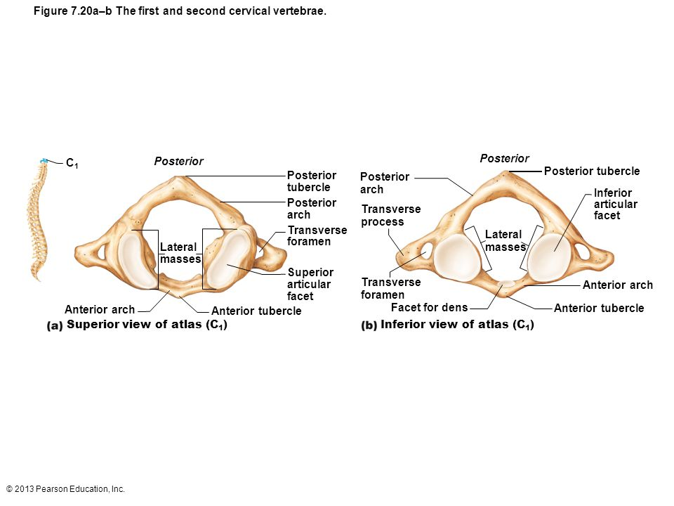 Figure 7.20a–b The first and second cervical vertebrae.
