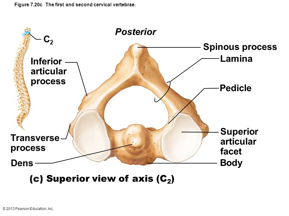 Figure 7.20c The first and second cervical vertebrae.