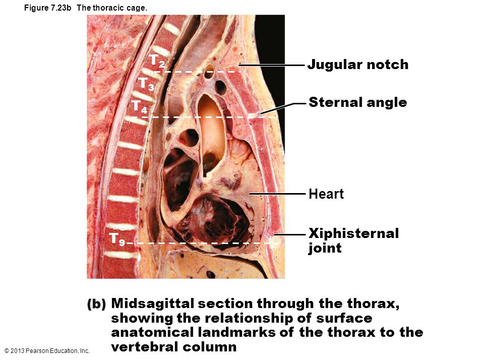 Figure 7.23b The thoracic cage.
