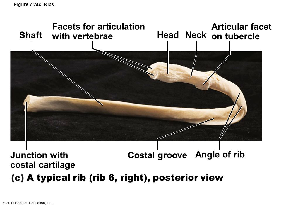 Facets for articulation with vertebrae Articular facet on tubercle