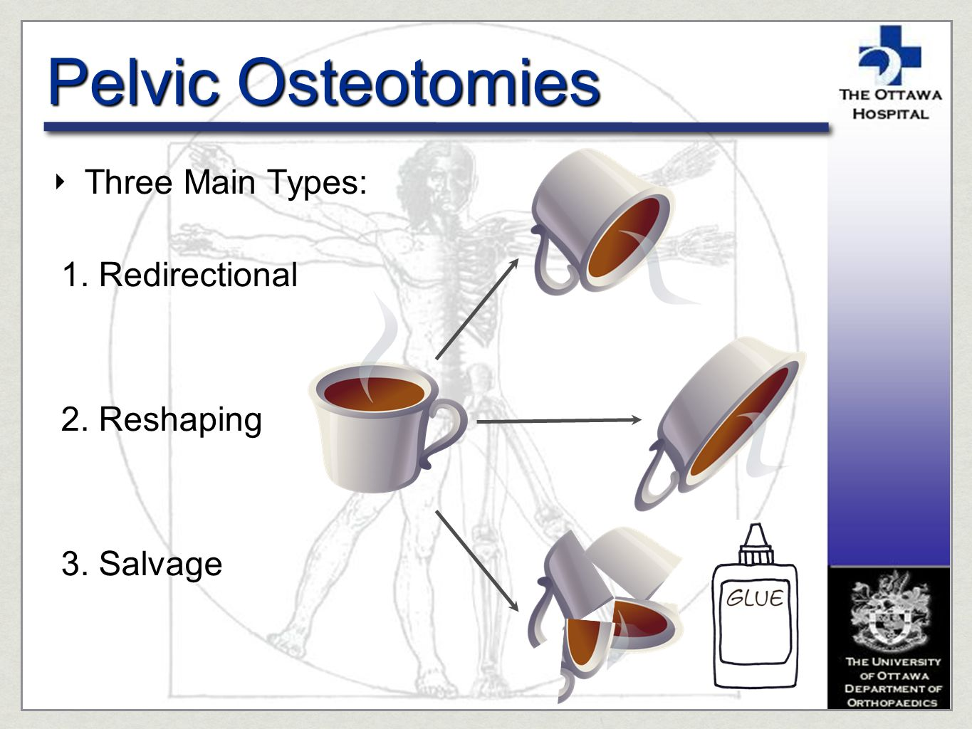 Pelvic Osteotomies Three Main Types: Redirectional Reshaping Salvage