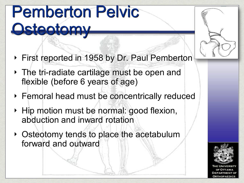 Pemberton Pelvic Osteotomy
