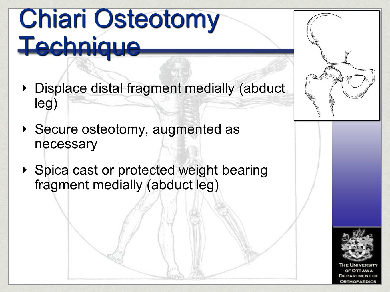Chiari Osteotomy Technique
