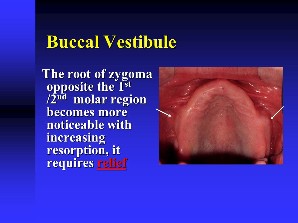 Buccal Vestibule The root of zygoma opposite the 1st /2nd molar region becomes more noticeable with increasing resorption, it requires relief.