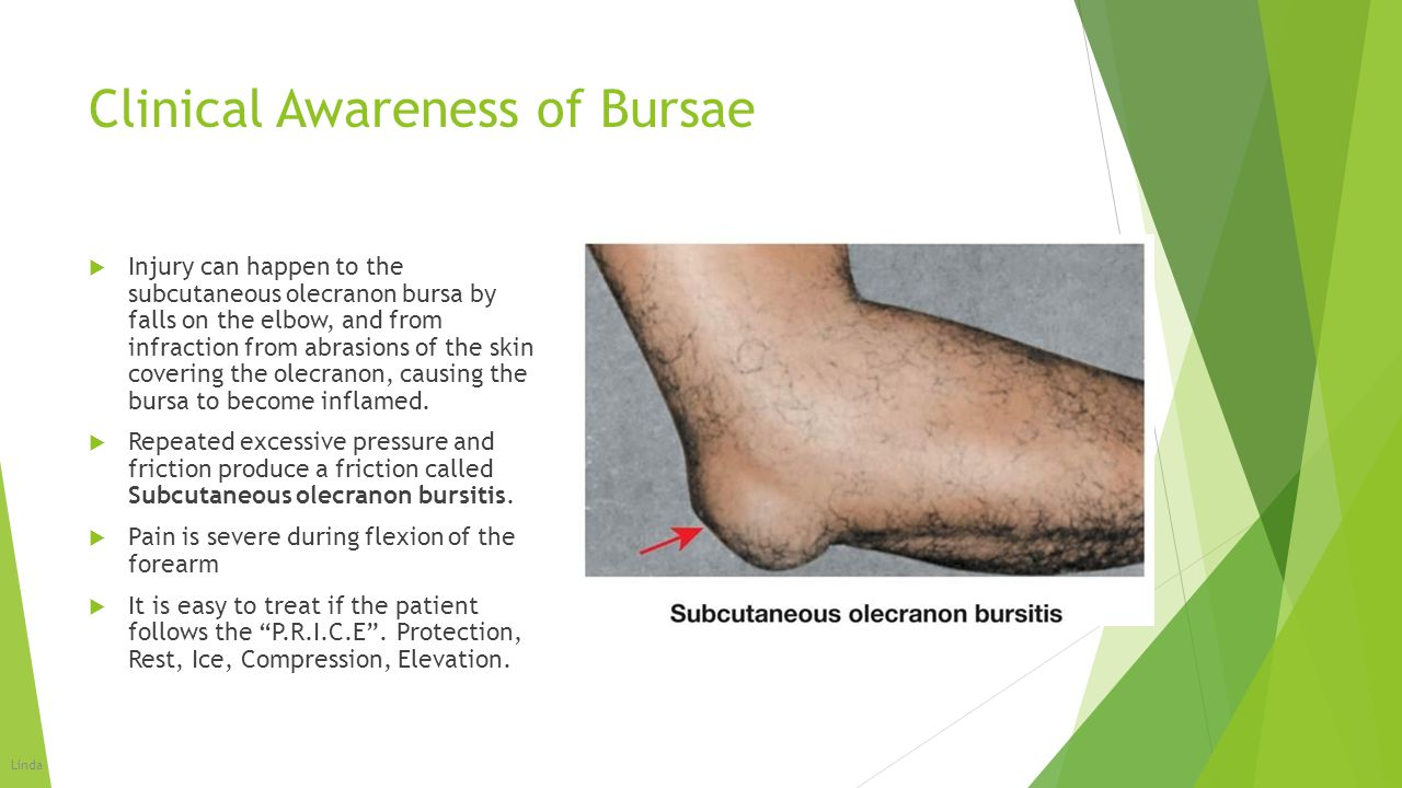 Clinical Awareness of Bursae