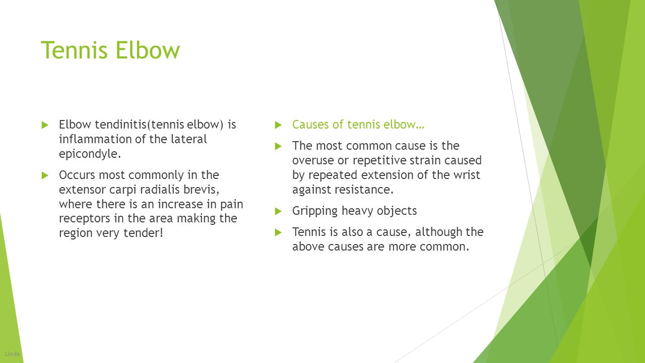 Tennis Elbow Elbow tendinitis(tennis elbow) is inflammation of the lateral epicondyle.