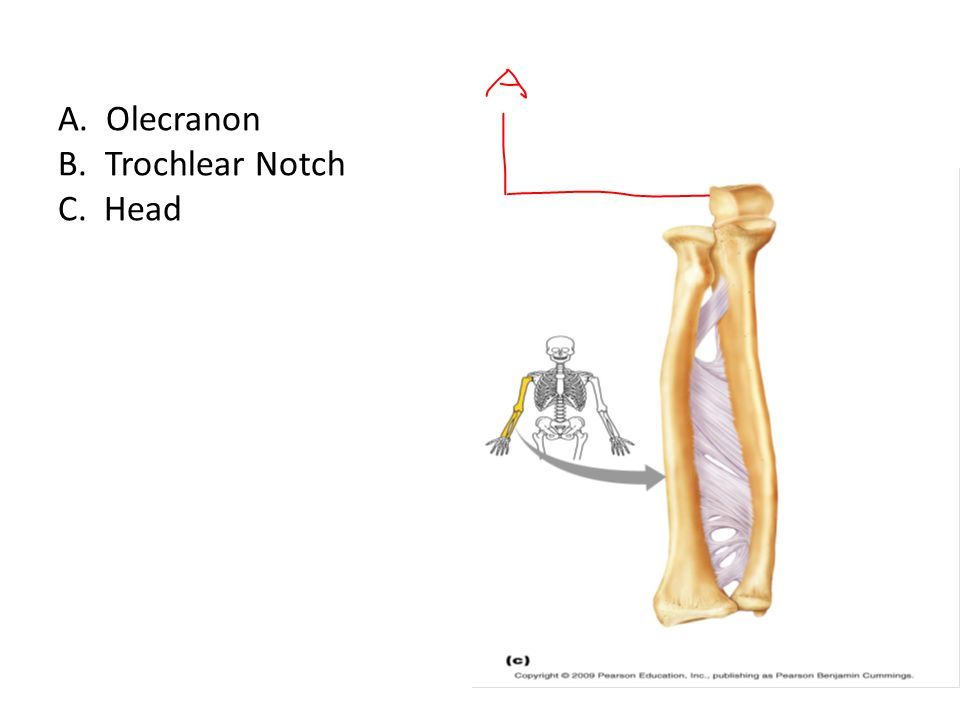 A. Olecranon B. Trochlear Notch C. Head
