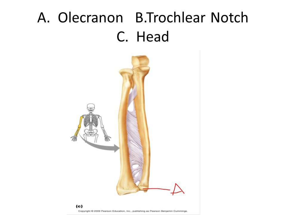A. Olecranon B.Trochlear Notch C. Head
