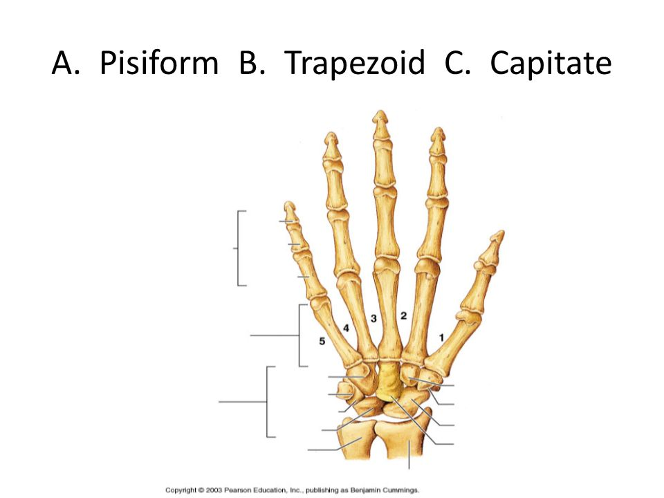 A. Pisiform B. Trapezoid C. Capitate