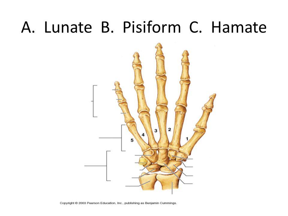 A. Lunate B. Pisiform C. Hamate