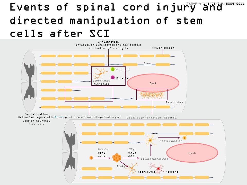 Events of spinal cord injury and directed manipulation of stem cells after SCI