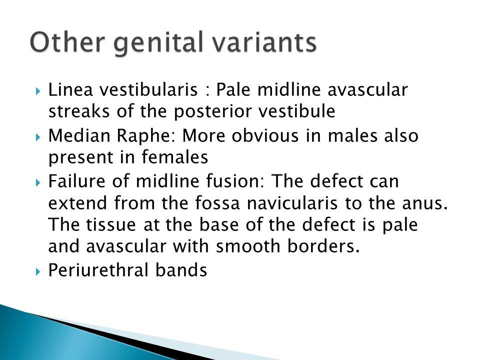 Other genital variants