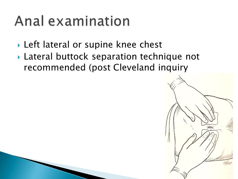 Anal examination Left lateral or supine knee chest