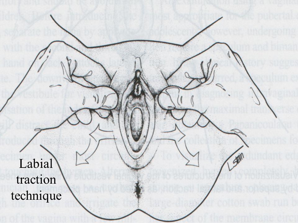Labial traction technique
