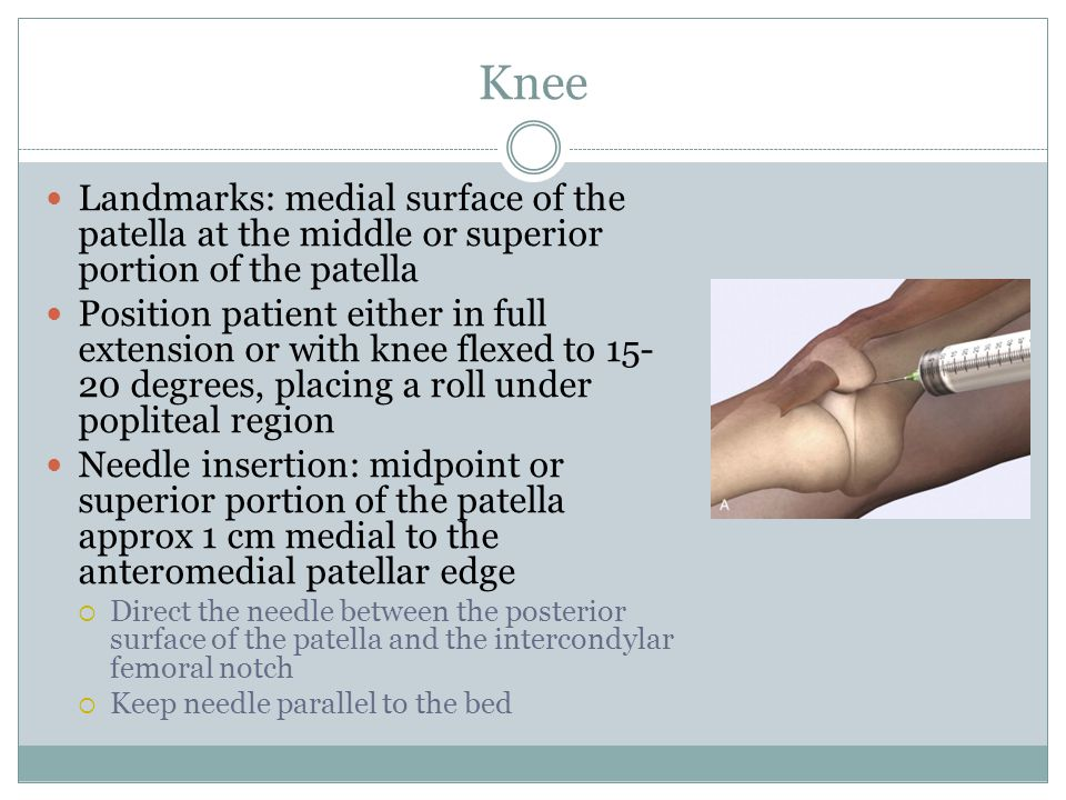 Knee Landmarks: medial surface of the patella at the middle or superior portion of the patella.