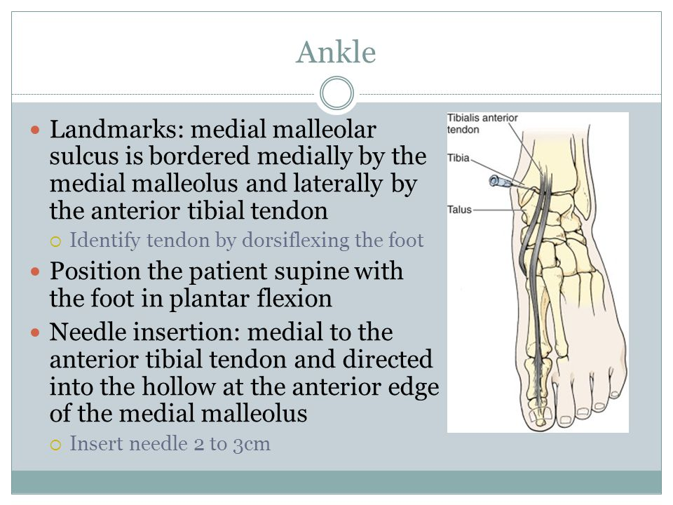 Ankle Landmarks: medial malleolar sulcus is bordered medially by the medial malleolus and laterally by the anterior tibial tendon.