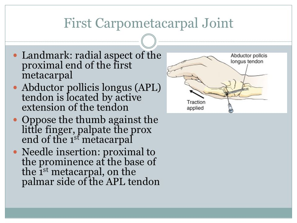 First Carpometacarpal Joint
