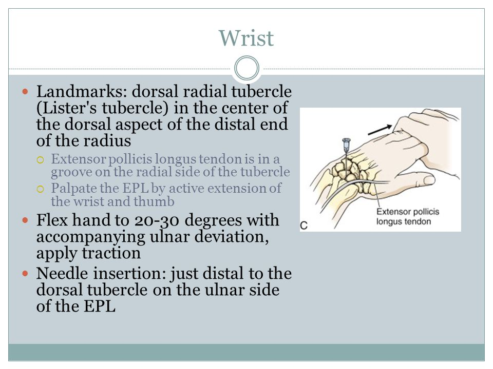 Wrist Landmarks: dorsal radial tubercle (Lister s tubercle) in the center of the dorsal aspect of the distal end of the radius.