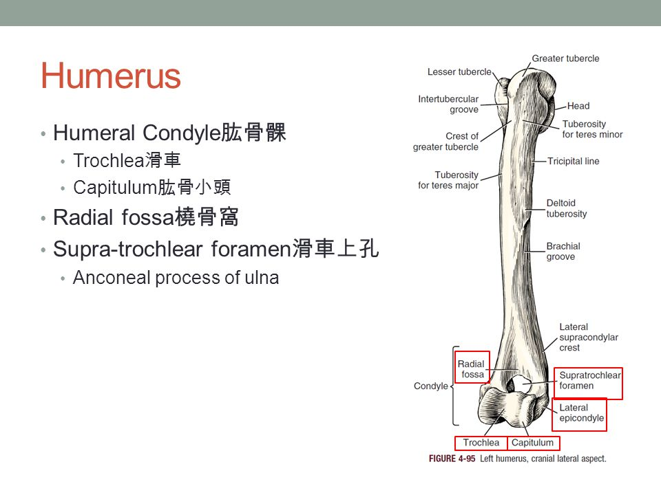 Humerus Humeral Condyle肱骨髁 Radial fossa橈骨窩 Supra-trochlear foramen滑車上孔