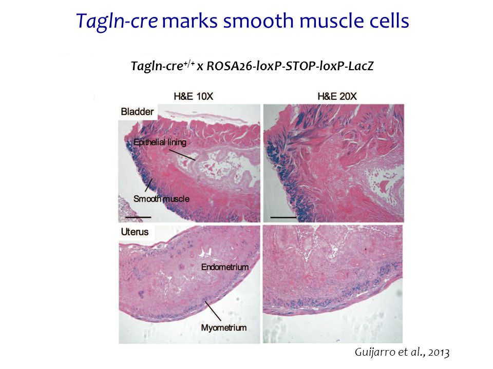 Tagln-cre marks smooth muscle cells