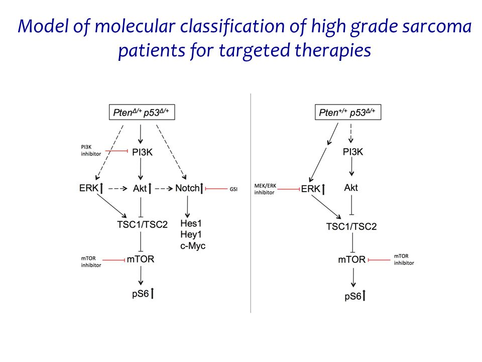 Model of molecular classification of high grade sarcoma patients for targeted therapies