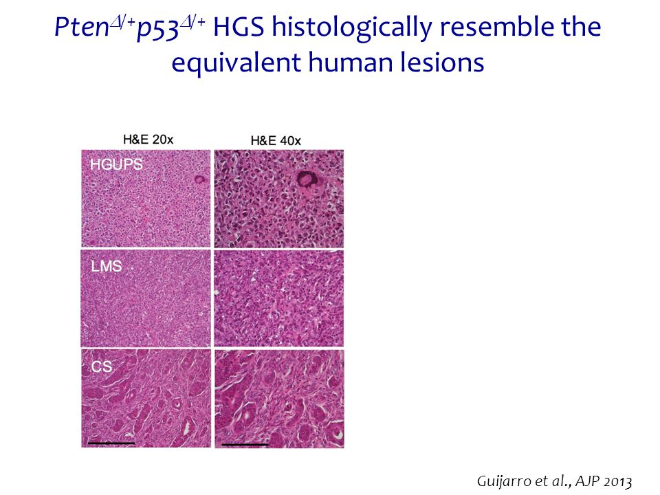 PtenD/+p53D/+ HGS histologically resemble the equivalent human lesions