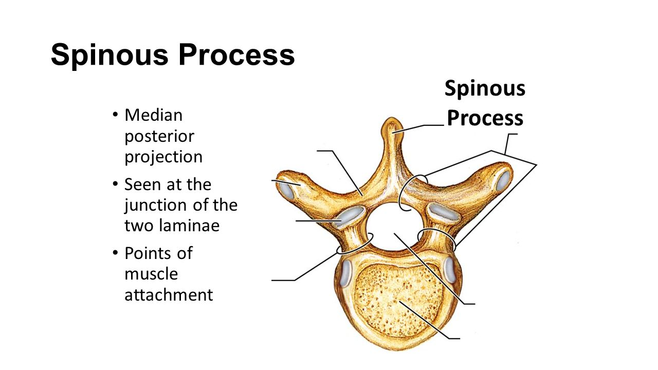 Spinous Process Spinous Process Median posterior projection