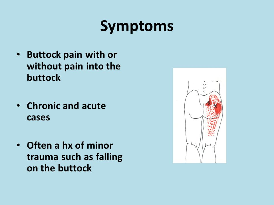Symptoms Buttock pain with or without pain into the buttock
