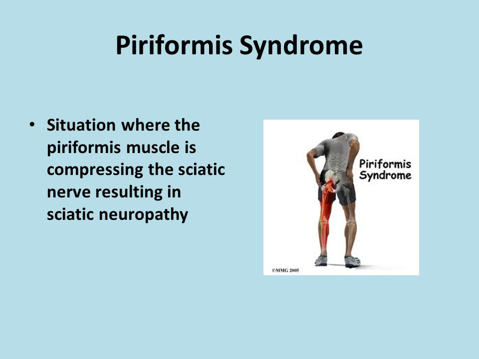 Piriformis Syndrome Situation where the piriformis muscle is compressing the sciatic nerve resulting in sciatic neuropathy.