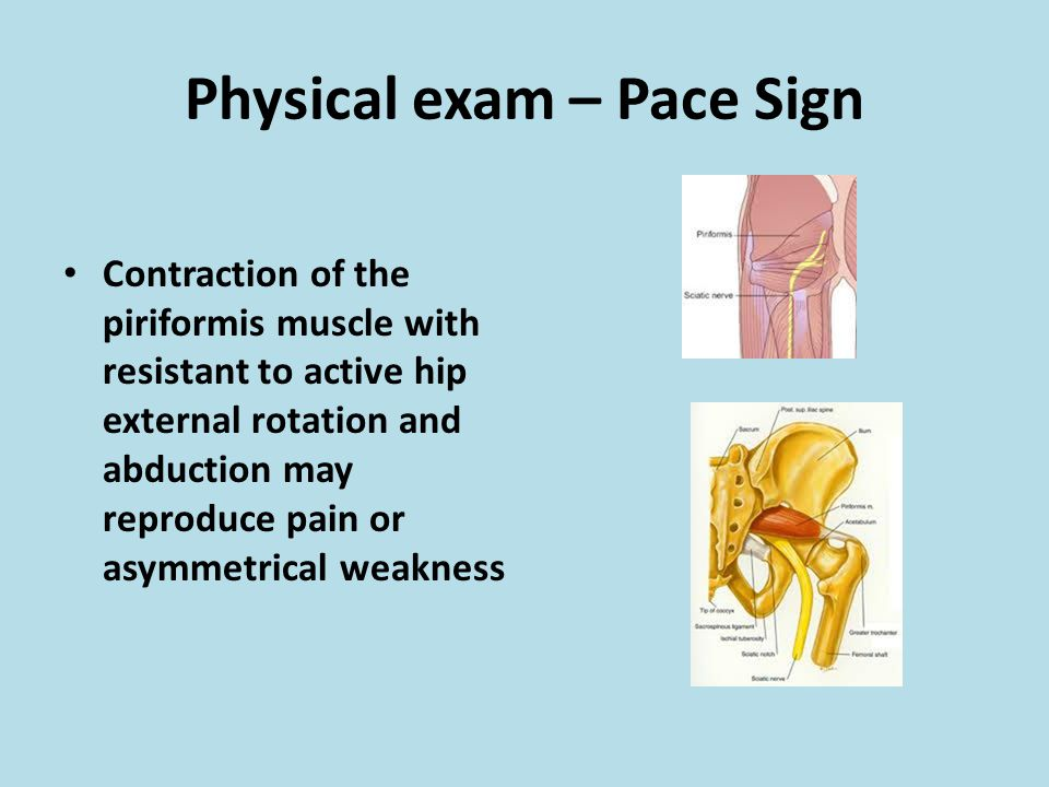 Physical exam – Pace Sign