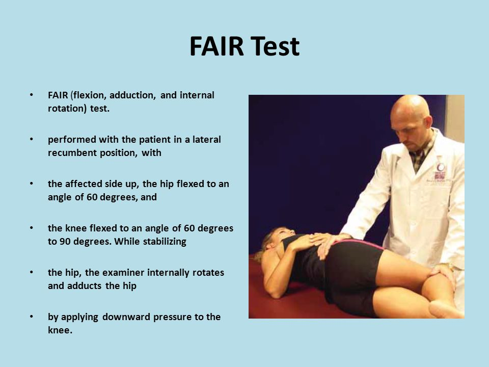 FAIR Test FAIR (flexion, adduction, and internal rotation) test.