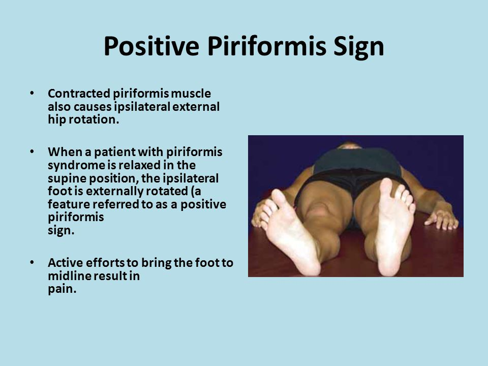 Positive Piriformis Sign