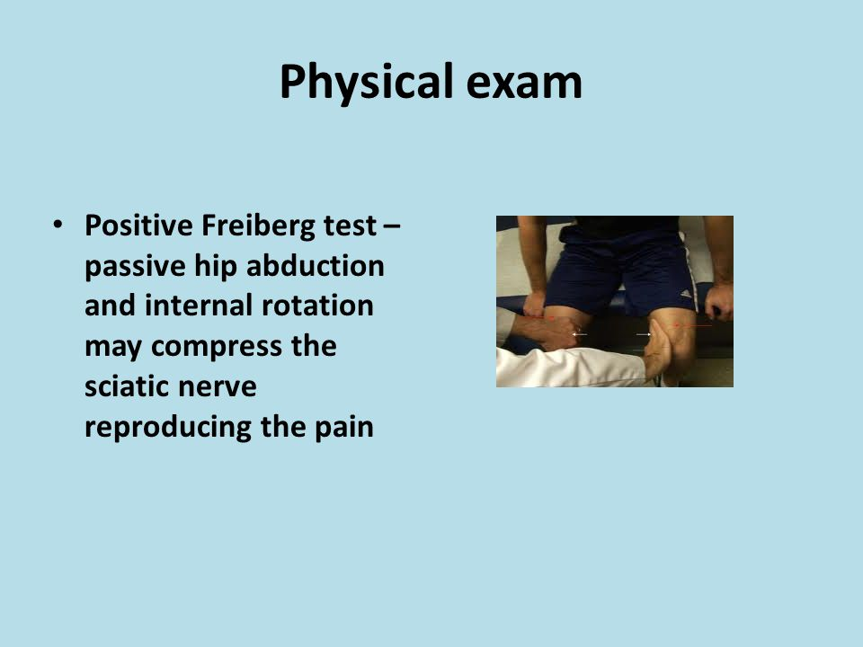 Physical exam Positive Freiberg test – passive hip abduction and internal rotation may compress the sciatic nerve reproducing the pain.