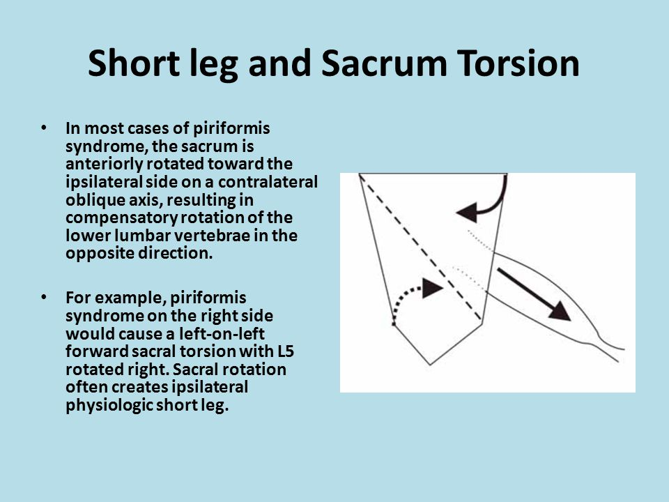 Short leg and Sacrum Torsion
