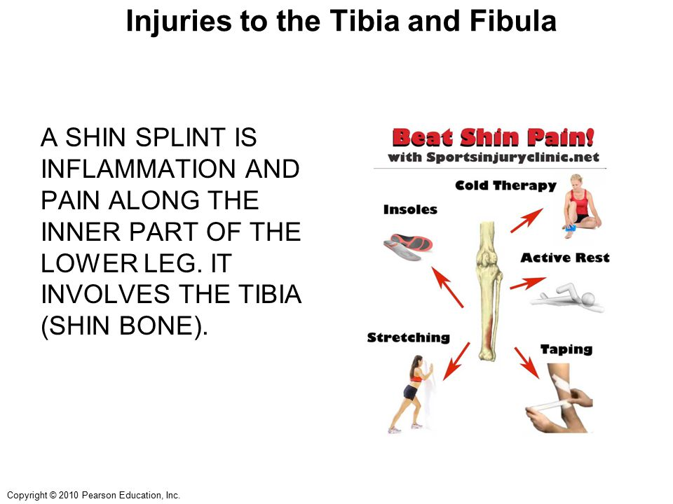 Injuries to the Tibia and Fibula