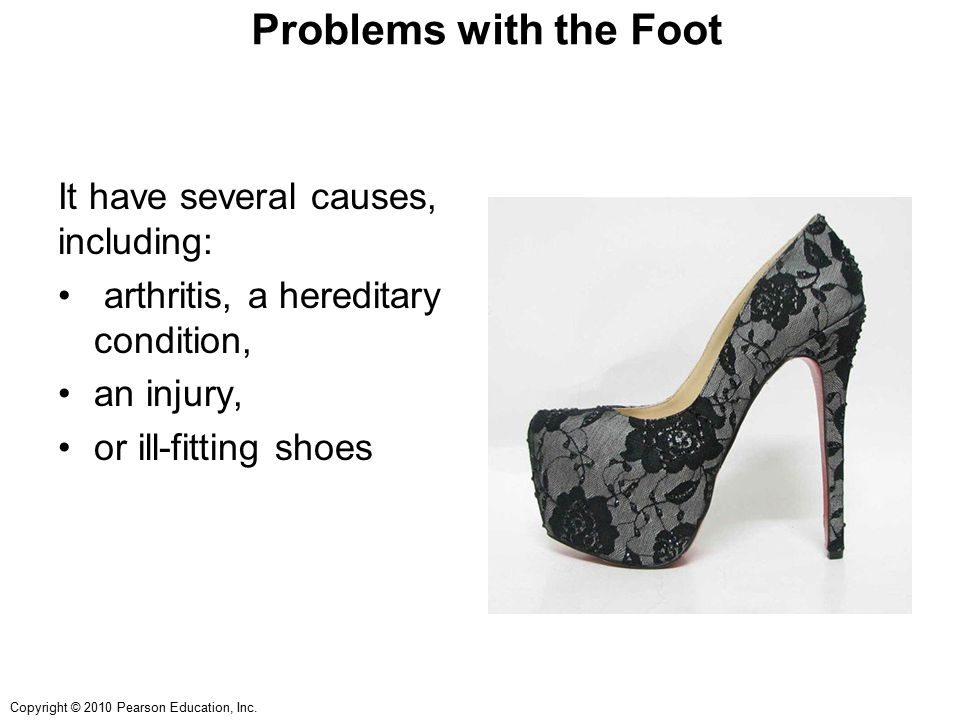 Problems with the Foot It have several causes, including: