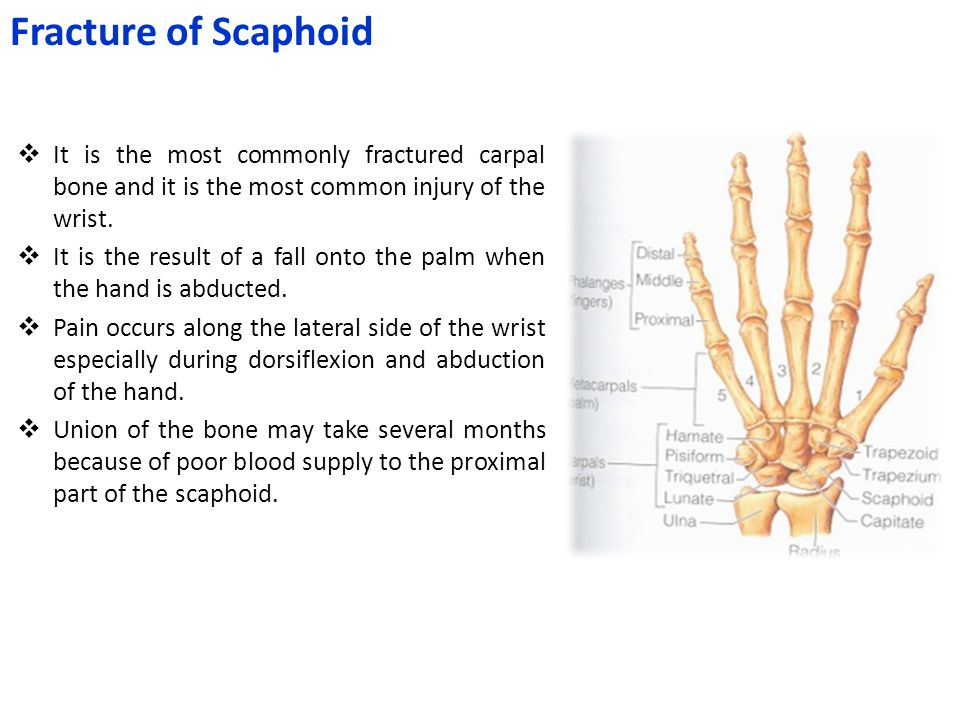 Fracture of Scaphoid It is the most commonly fractured carpal bone and it is the most common injury of the wrist.