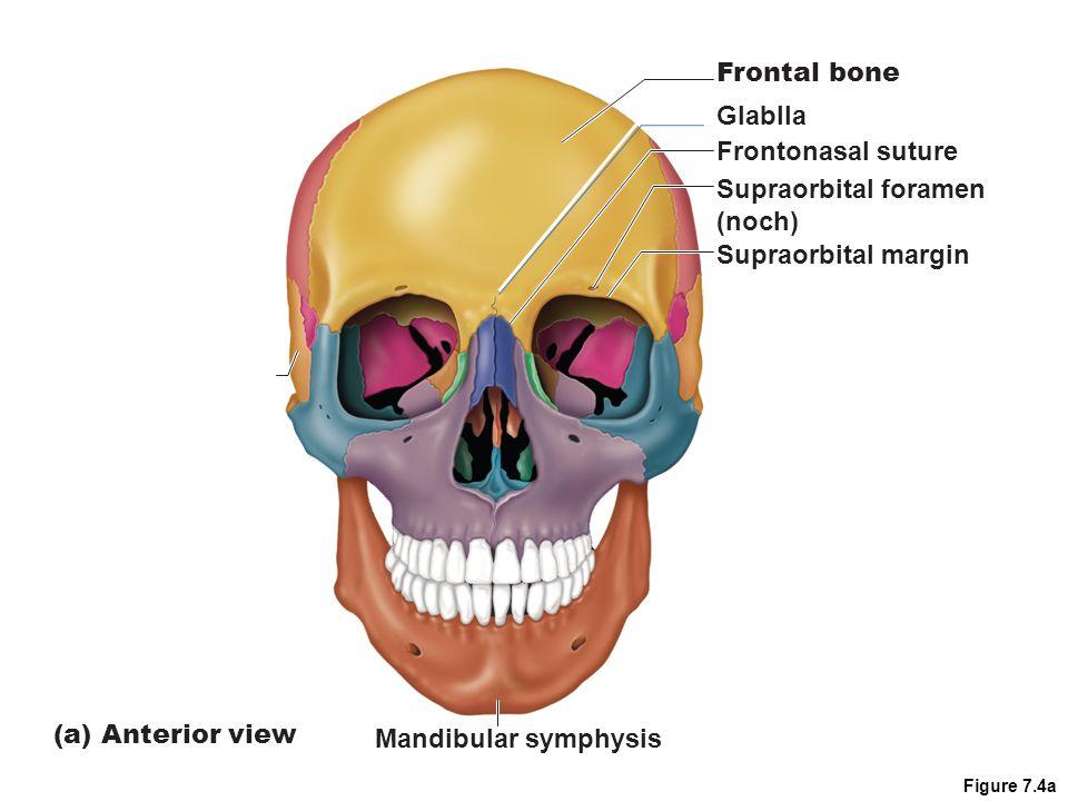 Frontal bone Glablla Frontonasal suture Supraorbital foramen (noch)