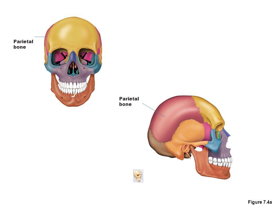 Parietal bone Parietal bone Figure 7.4a